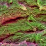 collagen-1024x712